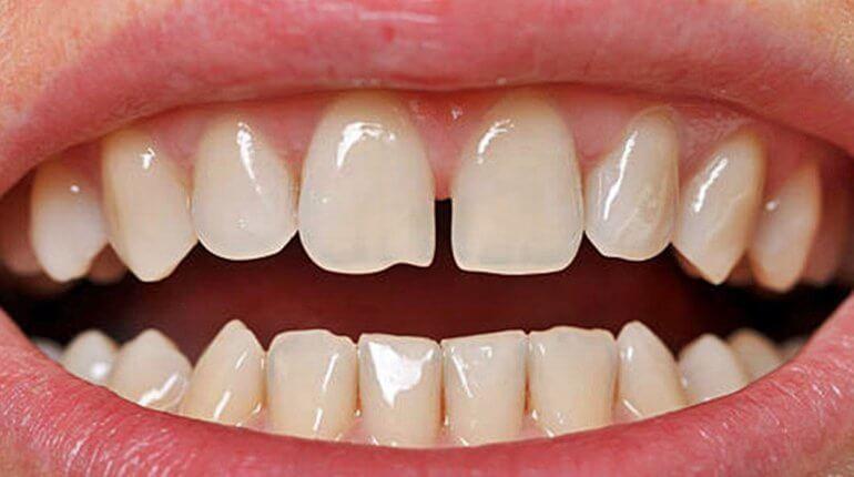 Rés a fogak között - Sokat elárul a személyiségedről!