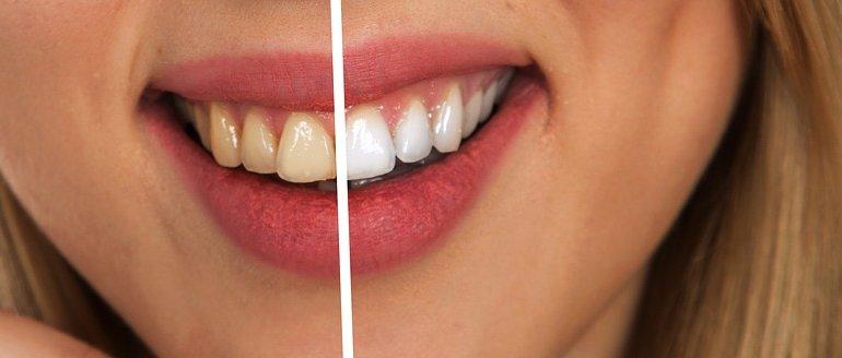 10 házi trükk a fogkő eltávolítására és a fog fehérítésére