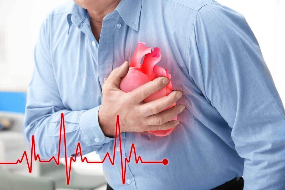 szívinfarktus